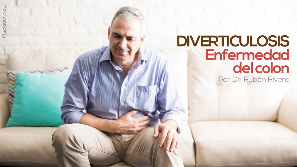 Diverticulosis: enfermedad del colon